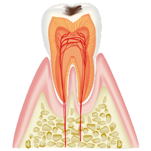 エナメル質がむし歯に侵された歯