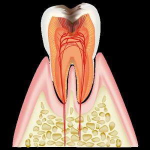 神経がむし歯に到達した際の写真