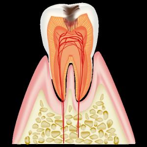 むし歯が象牙質に達した歯の図