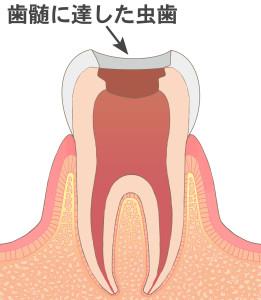 神経(歯髄)に達したむし歯